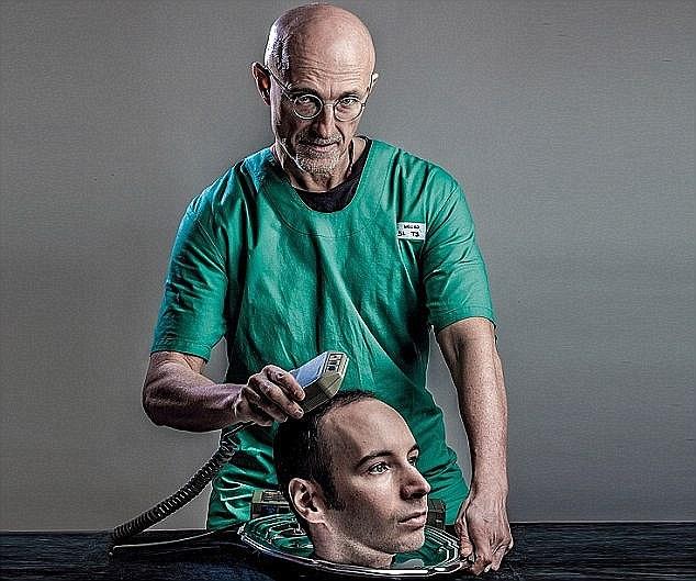 HUMAN HEAD TRANSPLANTS